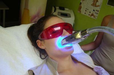 blanchiment des dents alger prix