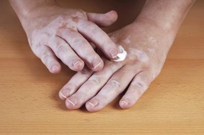Le vitiligo  Peut-on le guérir avec des remèdes maison ?