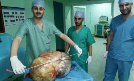 Tissemsilt : on lui enlève un kyste ovarien de 37 kilos