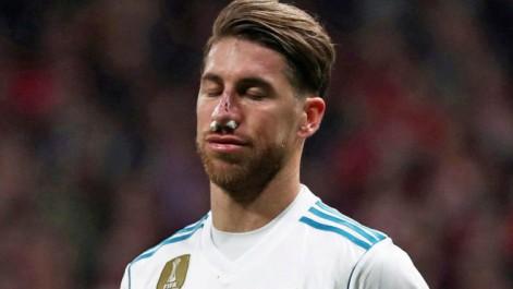 Real Madrid : Un masque, mais pas de chirurgie pour Ramos