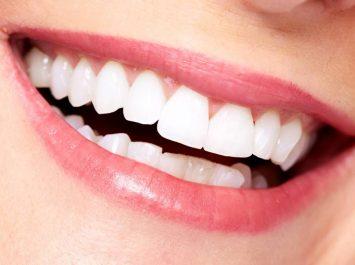 Pourquoi nos dents perdent de leur blancheur
