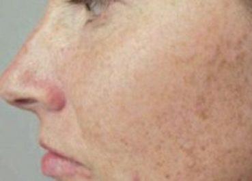 Les taches brunes sur la peau