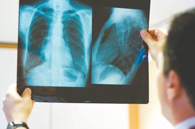 La tuberculose extra-pulmonaire en progression !