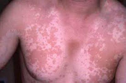 Solutions naturelles contre le pityriasis rosé