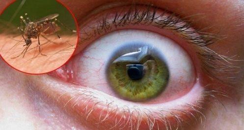 Virus du Nil occidental: Les directions de la santé appelées à renforcer le dispositif de surveillance