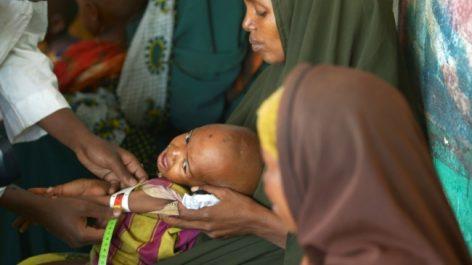 Somalie: L'épidémie de choléra a tué 42 personnes en 10 mois