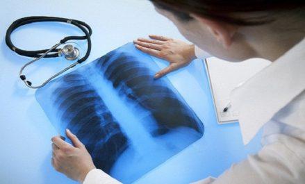 Des spécialistes en pneumologie insistent sur une «prise en charge totale» du traitement des patients