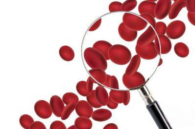 Santé : Quand penser à une anémie ?