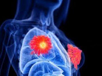 Cancer du sein : 3 500 femmes en meurent chaque année, faute d'une stratégie de prévention et de lutte «sérieuse et agressive»